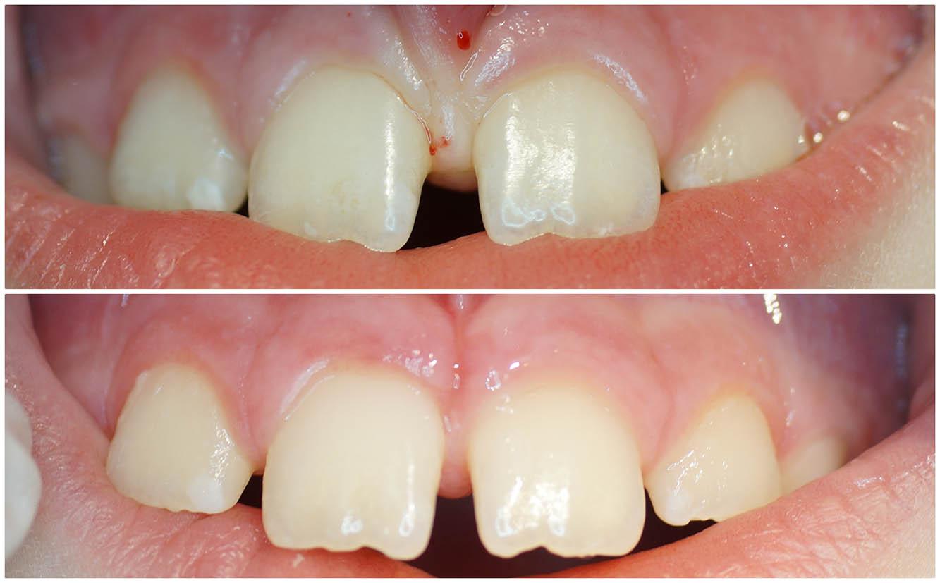 Ryc. 5 Widoczne przesunięcie przyśrodkowe zębów siecznych już po 2 tygodniach od zabiegu frenulektomii.