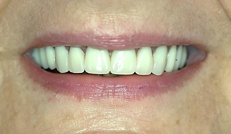 Ryc. 11 Proteza typu overdenture na zatrzaskach w jamie ustnej pacjentki.