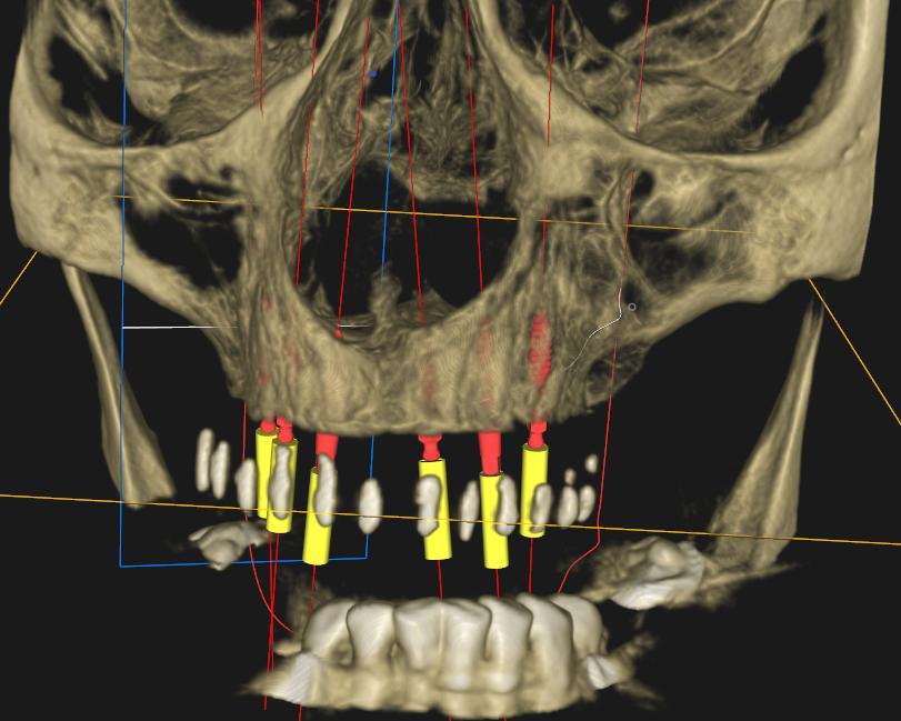 Ryc. 4 CBCT z szablonem chirurgicznym celem zaplanowania pozycji implantów.