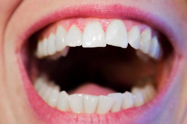 Możliwości współczesnej periodontologii. Rozbudowana faza higienizacyjna i korekcyjna