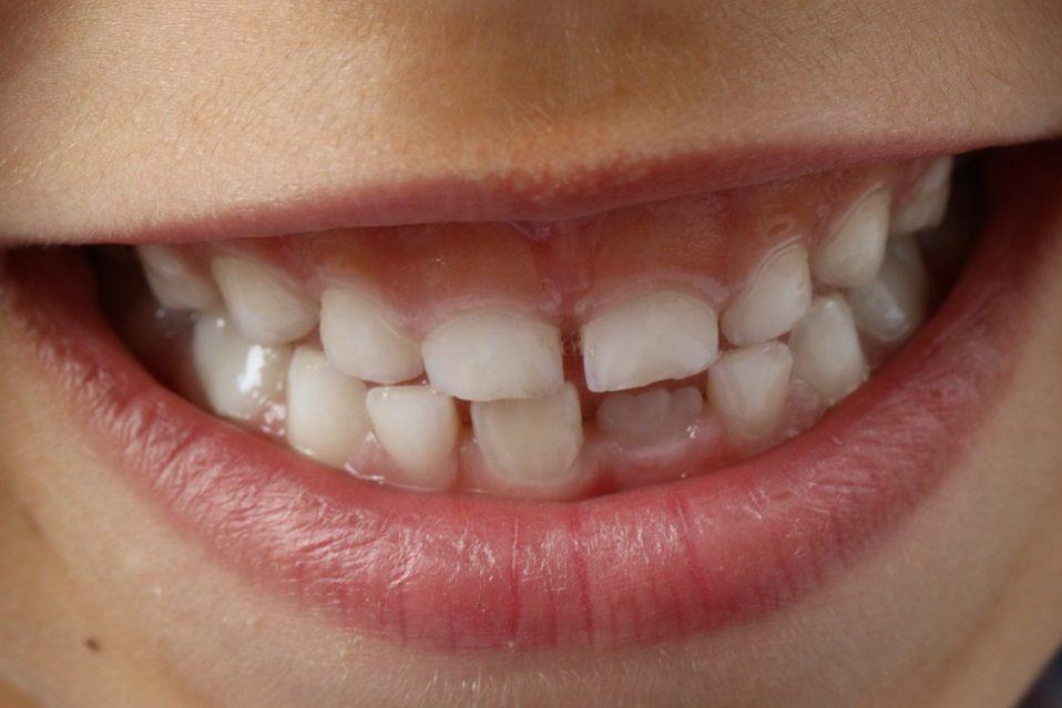 Lublin: reaktywacja stomatologii dziecięcej