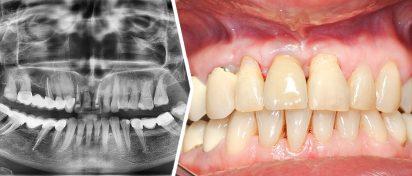 Autogenna zębina w chirurgii regeneracyjnej wyrostka zębodołowego- aspekt implantologiczny