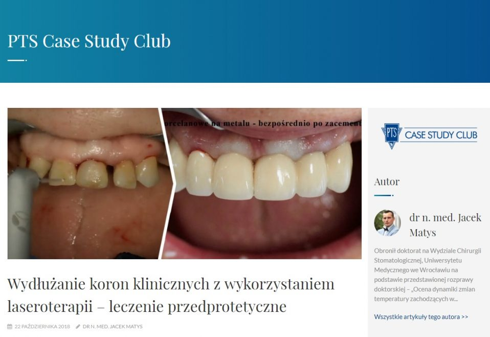 PTS Case Study Club