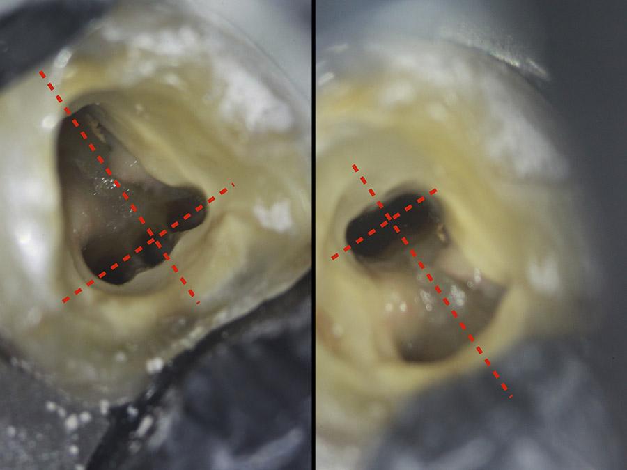 Ryc. 2 - Widok wewnątrz komory pierwszego dolnego zęba trzonowego z anatomią pięciokanałową