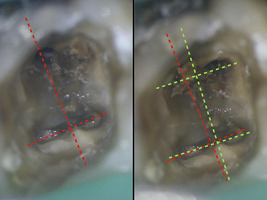 Ryc. 3 - Zobrazowanie różnicy w symetrii podyktowanej uwzględnieniem prawa zmiany koloru w pierwszym dolnym zębie trzonowym
