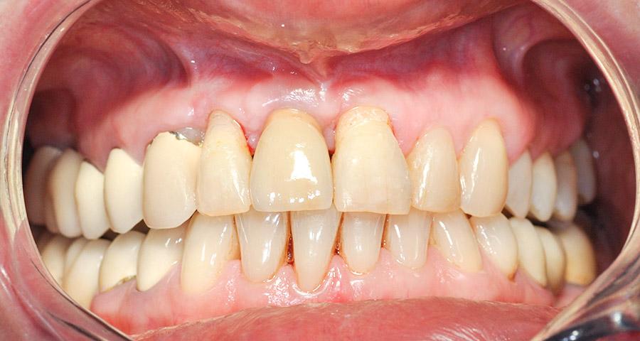 Ryc. 6 Obraz kliniczny po 9 miesiącach od dnia przykręcenia korony protetycznej