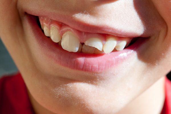 Urazy zębów u dzieci - postępowanie w wybranych sytuacjach klinicznych