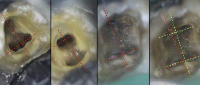"""Złoty środek między """"za dużo, a za mało"""" w otwieraniu komory zęba"""