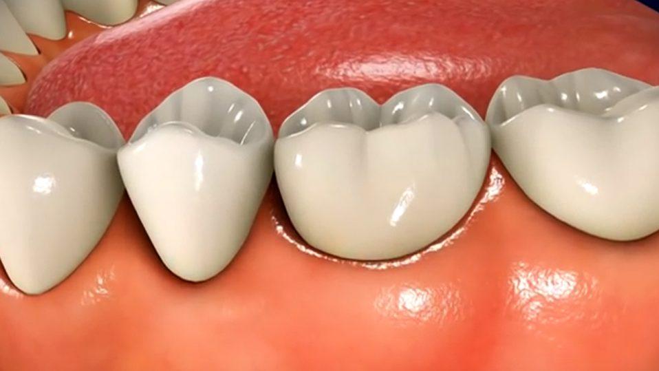Poprawna diagnostyka podstawą skutecznej terapii chorób błony śluzowej jamy ustnej