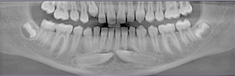 Ryc. 5. Rekonstrukcja pantomograficzna oraz skany tomografii wiązki stożkowej wykonanej przed zabiegiem