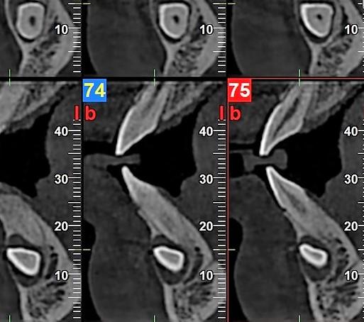 Ryc. 7. Rekonstrukcja pantomograficzna oraz skany tomografii wiązki stożkowej wykonanej przed zabiegiem