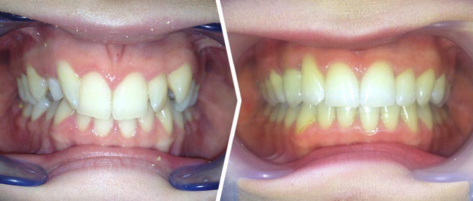 Case Study Club: leczenie zębów zatrzymanych