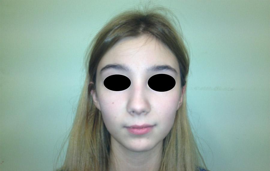 Ryc. 1 Fotografia zewnątrzustna przed leczeniem