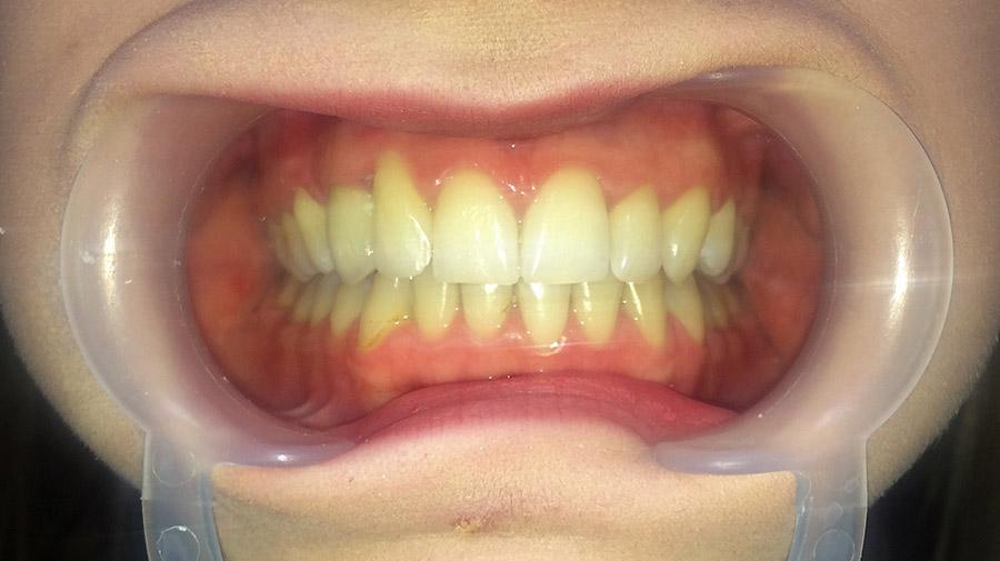 Ryc. 10 Stan po leczeniu ortodontyczno-protetycznym