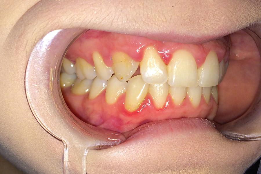 Ryc. 8 Zrotowany ząb 13 po leczeniu ortodontycznym