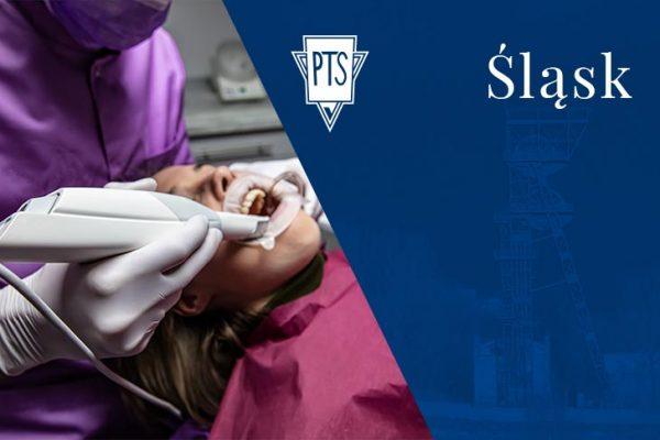 Skanery wewnątrzustne — wprowadzenie do cyfrowej stomatologii