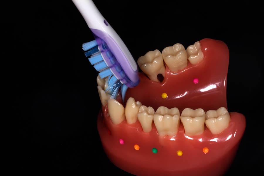 Ułożenie szczoteczki po stronie językowej zębów przednich