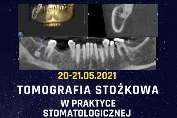 Tomografia stożkowa w praktyce kurs