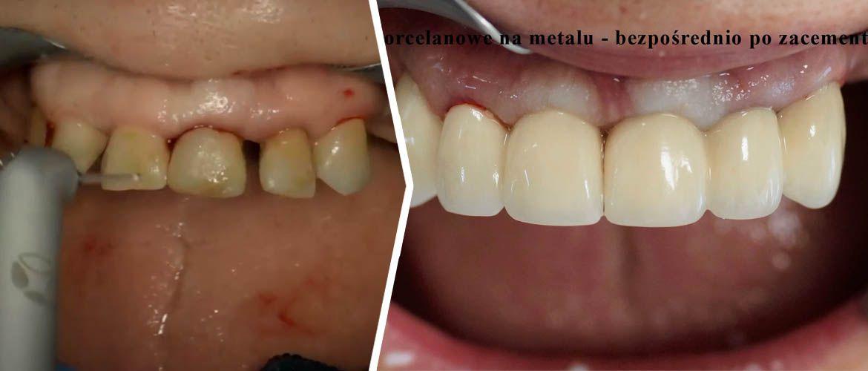Wydłużanie koron klinicznych z wykorzystaniem laseroterapii – leczenie przedprotetyczne
